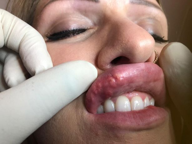 Lips and teath with fingers in gloves around to show harms of lip fillers