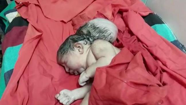 picture of a new born showing a baby born with three heads