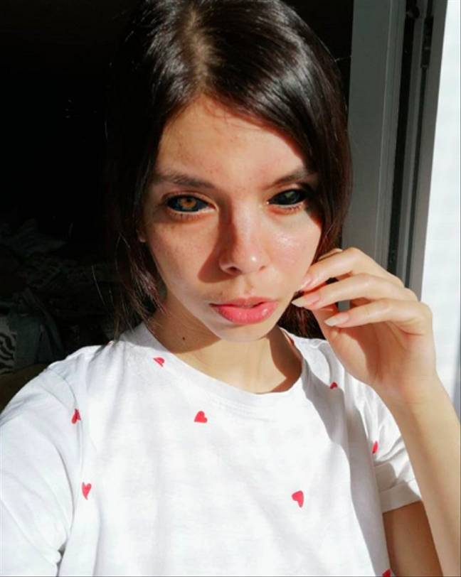 a girl in white shirt with damaged eyes to show harms of eye tattoo