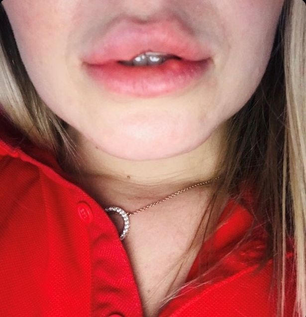 face and lips of a woman showing harms of lip fillers