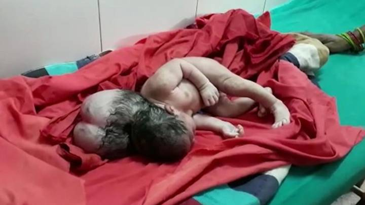 a rare picture of a baby born with three heads