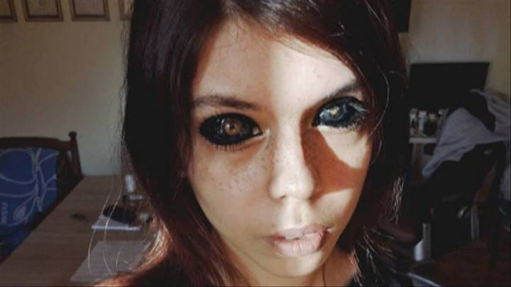 a girl with damaged eyes after botched eye tattoo procedure and showing harms of eye tattoo